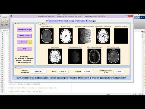 Brain Tumor Detection Using Watershed Technique Matlab
