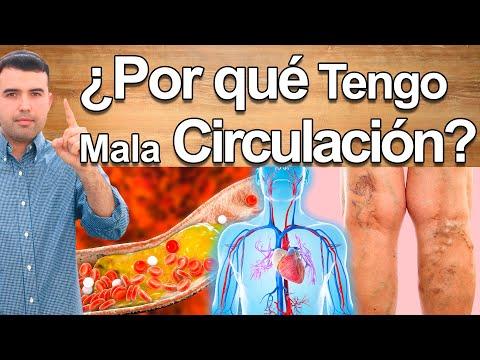 Principales Causas Por Las Que Se Tapan Las Arterias y Cómo Remediarlo