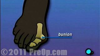 Bunion Removal Foot Surgery PreOp® Patient Education HD