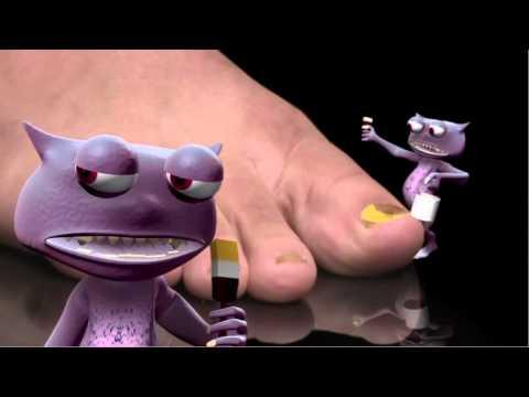 Por que tiempo es posible sanar el hongo sobre las uñas del pie