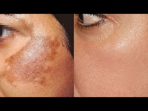 Mesotherapy ascorbic acid laban pigmented spot