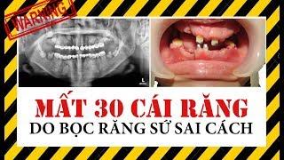 Lời Cảnh Báo: Mất 30 Cái Răng Do Bọc Răng Sứ Sai Cách