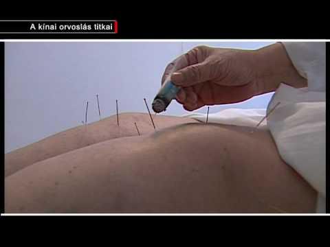 Prosztatagyulladás diagnosztizálása és kezelése