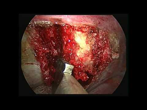 Anterior Discectomy & Posterior Spinal Instrumentation and Fusion (1 of 2)