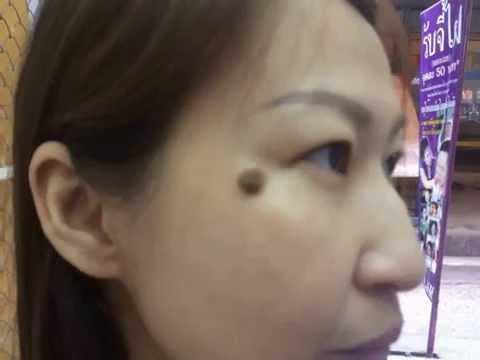 Die braune Pigmentation auf der Person und den Hals