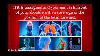 Fast Forward Head Posture