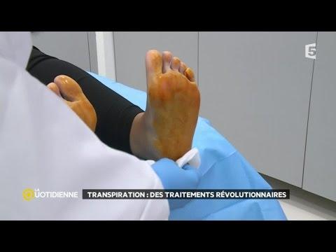 Tratamento de oxiurus com albendazol