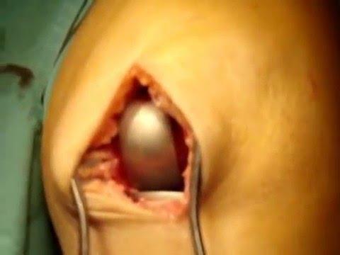 Dolor por encima de la cintura a lo largo de la columna vertebral
