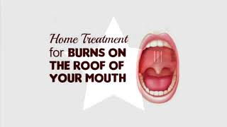 Home Treatment for Burns on the Roof of Your Mouth!1