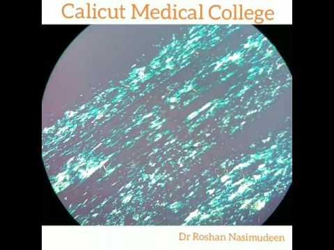 Propolis makulayan review ng fungus toenails