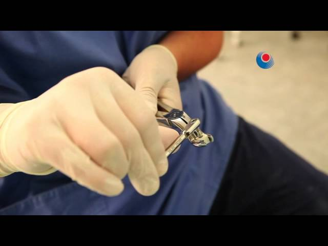 SmartBone - Manual Implant Screwing