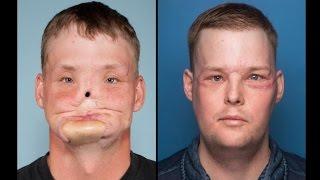 Exclusive: Groundbreaking Face Transplant