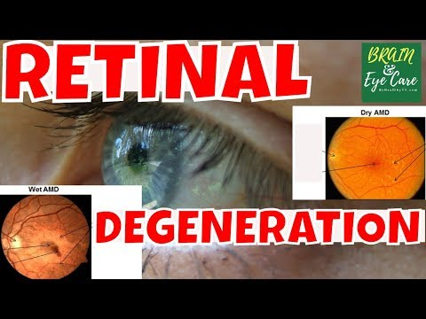 Retina a szem magas vérnyomás