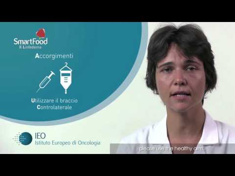 Esofago varicosity a