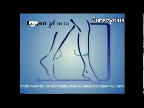 Trattamento della sublussazione della prima vertebra cervicale in un bambino