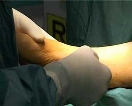 Come rimuovere i sali sulle articolazioni