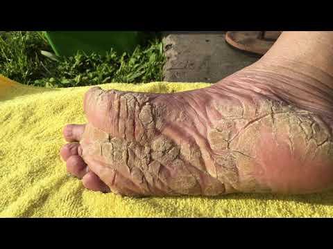 Die Cremes für die Behandlung der Schuppenflechte
