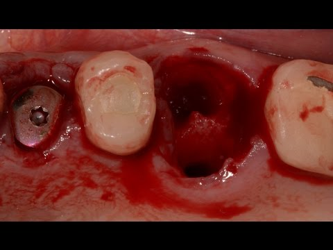 Extractions and Immediate Implant - Upper Premolar and Molar