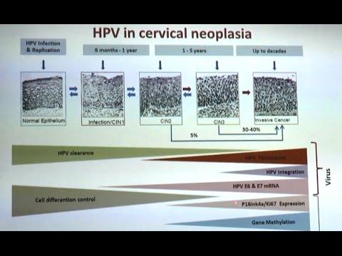 Papilloma virus e tumore-collo-utero