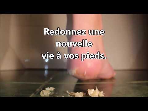 Les contre-indications à la varicosité des veines des pieds