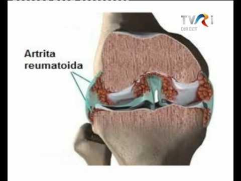 Dureri articulare și picioare umflate