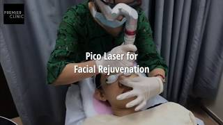 How do laser removes pigmentation?