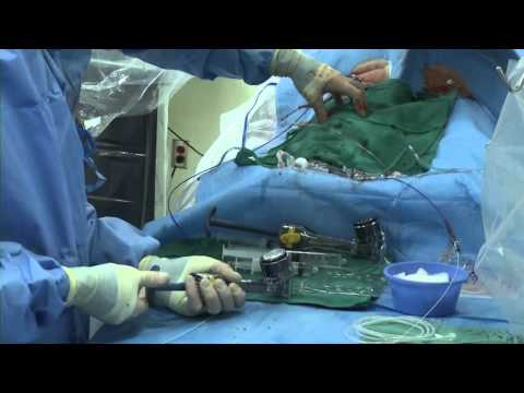 รักษาที่ไม่ผ่าตัดเส้นเลือดขอด