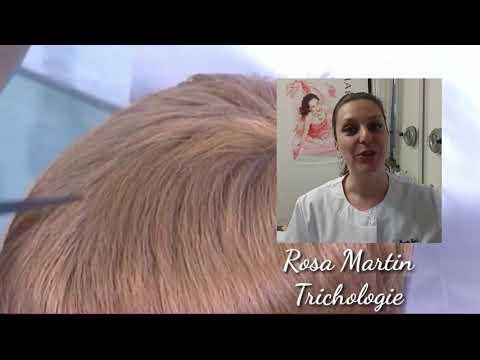 Ajewit der Haarausfall