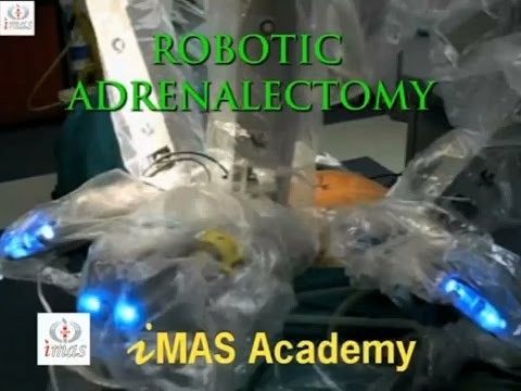 Robotic Adrenalectomy