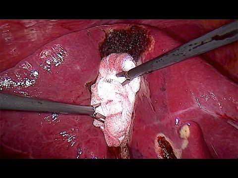 Cholecystektomia laparoskopowa z powodu ostrego zapalenia pęcherzyka żółciowego. Postępowanie z krwawieniem z loży pęcherzyka