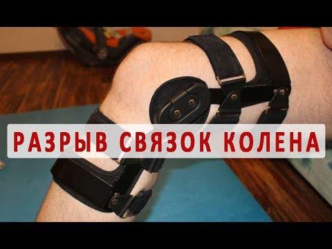 Симптомы и лечение разрыва связок колена