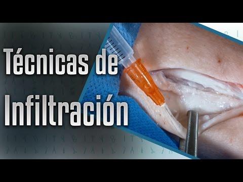 Inervación tobillo y suministro de sangre