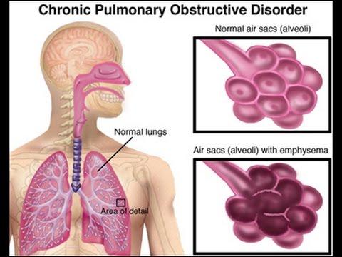 Symptômes encéphalopathie hypertensive