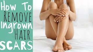 How To Remove Ingrown Hair Scars | Victoria Victoria
