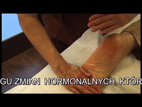 Guzki na nogach deformacji palców