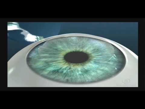 Какие очки нужны при близорукость и дальнозоркость
