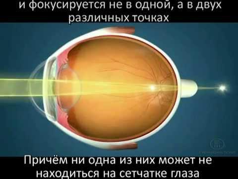 Какое нормальное давление у человека глазное давление