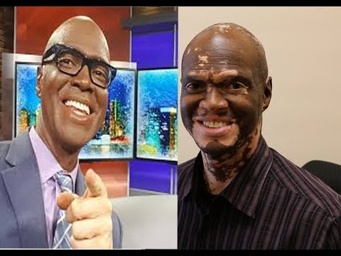 Lee Thomas - News Anchor, Movie Critic and Turning White