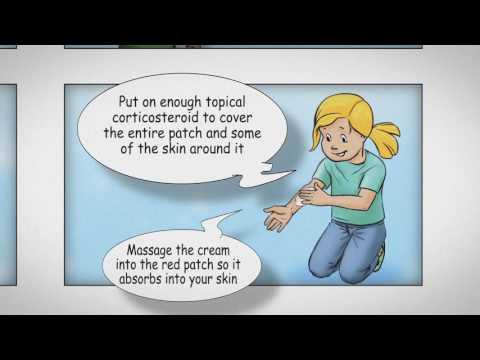 Che calmare la pelle a dermatite atopic