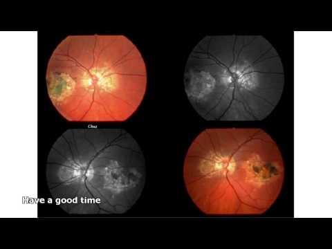 Будет ли зрение после операции витрэктомия