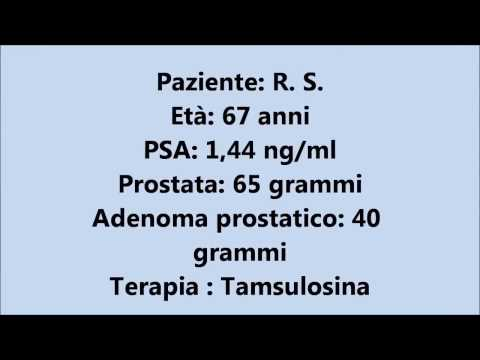 Orgasmo in video massaggio prostatico