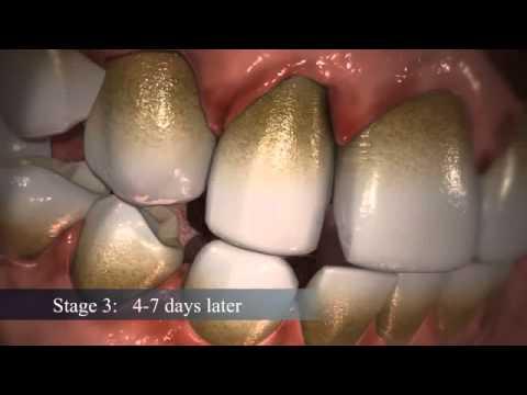 Πώς σχηματίζεται η πλάκα στα δόντια