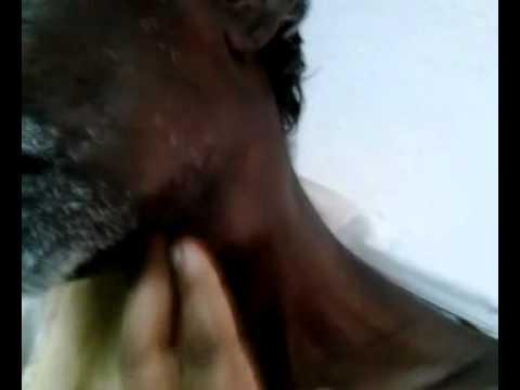Ragione stomaco varicosity