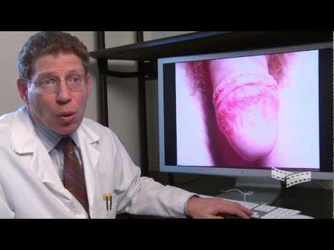 Die Creme von der Hautentzündung und dem Ekzem