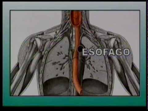 La trazione della colonna vertebrale è quello che è e il trattamento