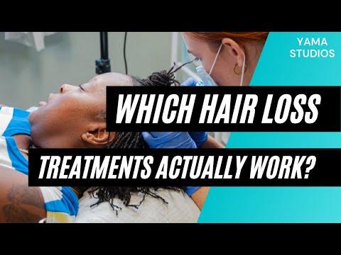 Which Hair Loss Treatments Actually Work? A Hair Loss Coach Explains