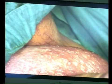 Bakteriološka ispitivanje pražnjenja prostate izlučivanja