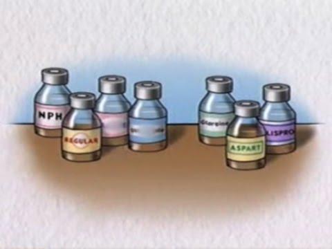 Kiwi Sie nützlich bei Typ-2-Diabetes