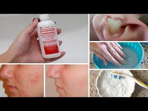 Fungo di unghie primi sintomi