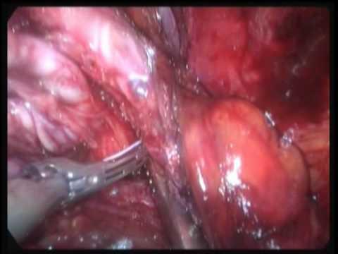 Punto per cupping durante prostata